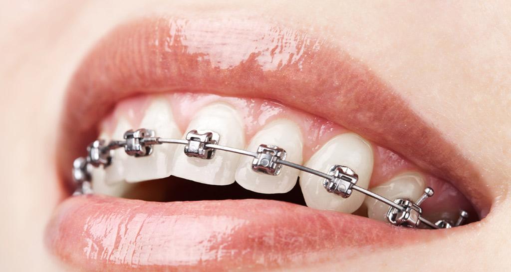 Ortodontik Tedavi Sırasında Dikkat Edilmesi Gerekenler