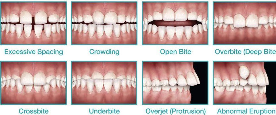 ortodontik problemler