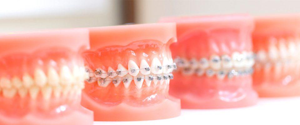 diş teli tedavisi