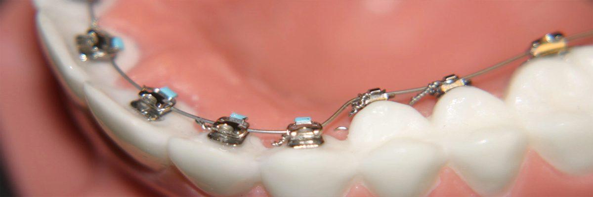 Bursa Ortodonti Uzmanları