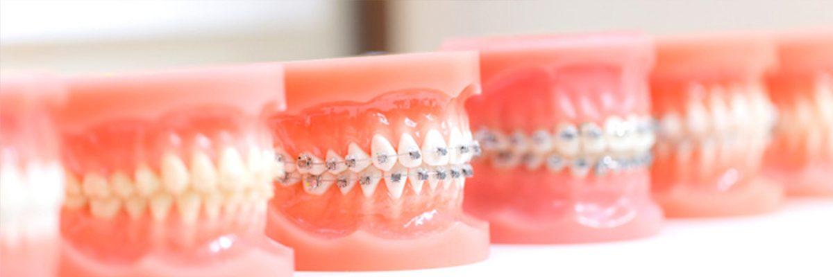 Ortodontist Bursa